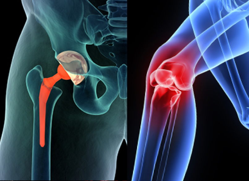 3 Exercises to Get Rid of A Limp After Having Hip